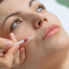 Les injections de Botox