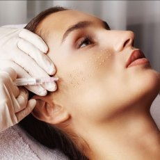 Dermal Fillers / Mouthand Lips