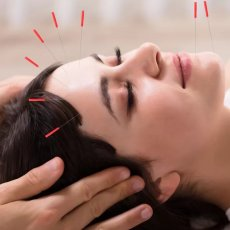 Acupuncture Services Home Visit & Clinic in London