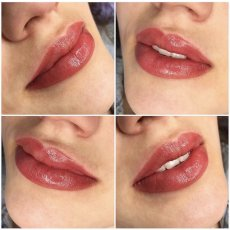 Lip Tattooing - Fuller Lips For a Glamorous Appearance