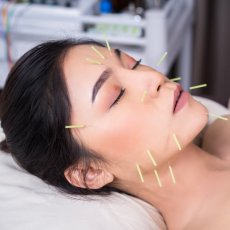 Qualified Acupuncture Home Visits in London